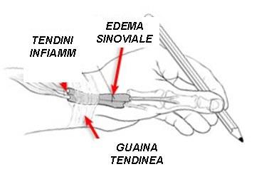 Tenosinovite 1